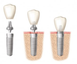 dental implants fairbanks, alaska